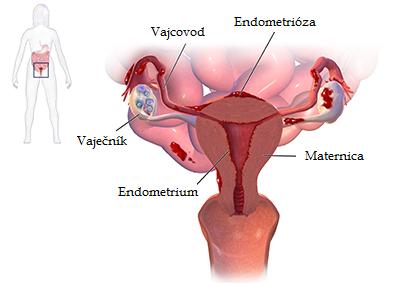 endometrioza_1.png